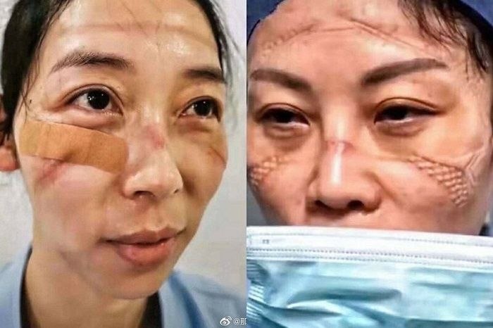 როგორ გამოიყურებიან ჩინელი ექიმები კორონავირუსთან ბრძოლის ხანგრძლივი და დატვირთული დღის შემდეგ